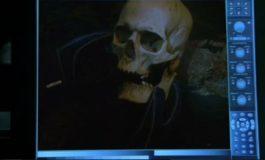 Мужчина с костью – фото момента из 18 серии 1 сезона сериала Кости